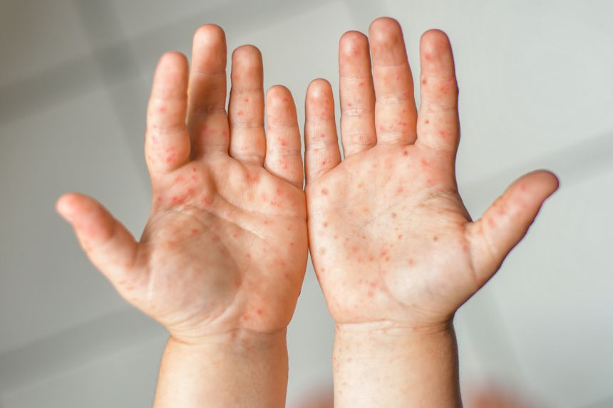 Hand Foot & Mouth Disease (HFMD)